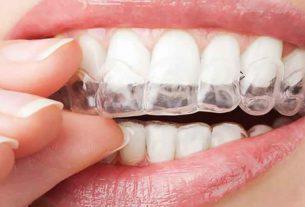 βρυγμός είναι το σφίξιμο των δοντιών